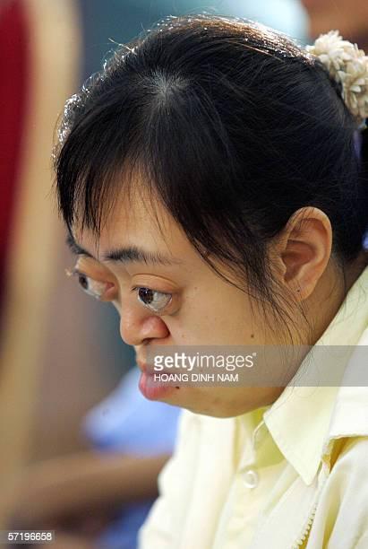 Vietnam's alleged Agent Orange victim Van Long attends an international conference on the effects of the Vietnam War defoliant Agent Orange in Hanoi...