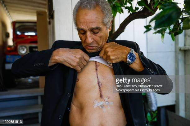Hany Metwally who had open heart surgery two weeks ago shows off his scar outside his home on Wednesday April 22 2020 in Oakland California
