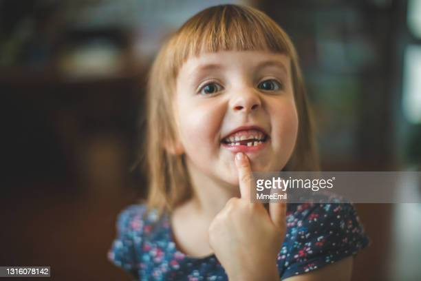 happy little girl showing her tooth gap - mmeemil stock pictures, royalty-free photos & images