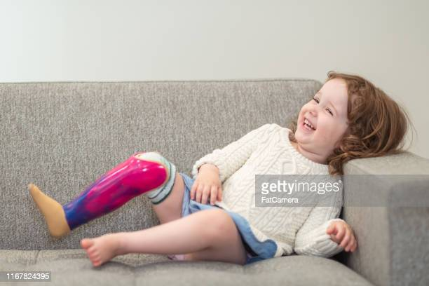 happy little girl with prosthetic leg - artificial limb stock pictures, royalty-free photos & images
