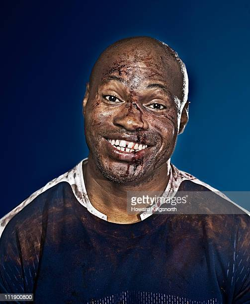 happy sportsman with bruised and bloodied face - ugly black men stock photos and pictures