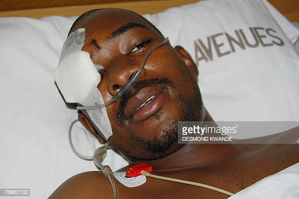 Nelson Chamisa spokesman for the Opposition Movement for democratic Change lays in the intensive care unit at a private hospital in Harare 21 March...