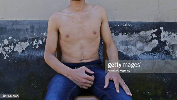 Hasan Ahmed is gaoled for 6 months in Hama came to Turkey 8 months ago explains the torture on prison in Syria and does not remember how he is...