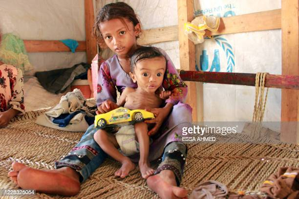 Hashem Mahmoud Atin, a ten-month-old displaced Yemeni child suffering from acute malnutrition and who is unable to reach a hospital for treatment, is...