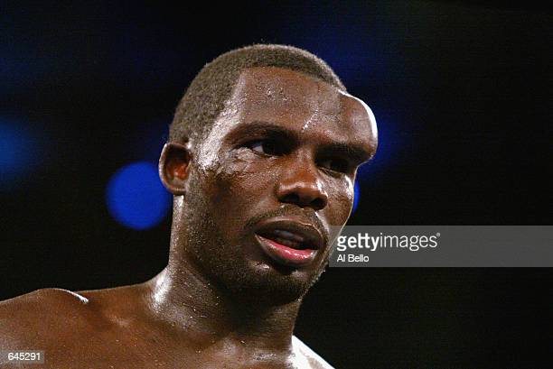 Hasim Rahman shows a bulge on his forehead due to a broken blood vessel after a headbutt by Evander Holyfield during the heavyweight title fight at...