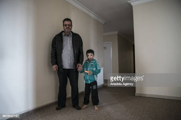 Hassan al Hussein 7 yearold Syrian holds a lego in his hand as he holds his father's hand in Hatay Turkey on January 09 2018 Hassan's face and large...