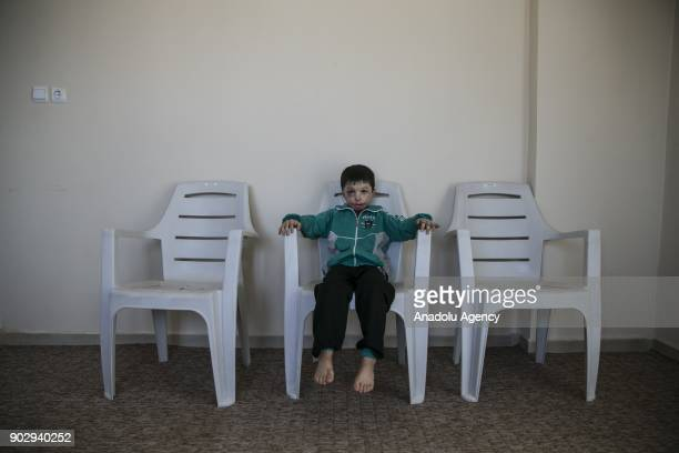 Hassan al Hussein 7 yearold Syrian poses for a photo in Hatay Turkey on January 09 2018 Hassan's face and large part of his body got burnt last year...