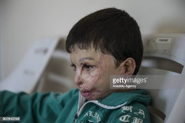 Hassan al Hussein 7 yearold Syrian sits on a chair in Hatay Turkey on January 09 2018 Hassan's face and large part of his body got burnt last year...