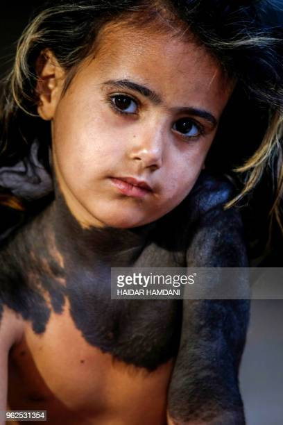 Haura a fouryearold Iraqi child with a rare skin congenital disease that covers much of her upper body in black marks and hair looks on as she sits...