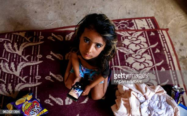 Haura a fouryearold Iraqi child with a rare skin congenital disease that covers much of her upper body in black marks and hair looks on while holding...