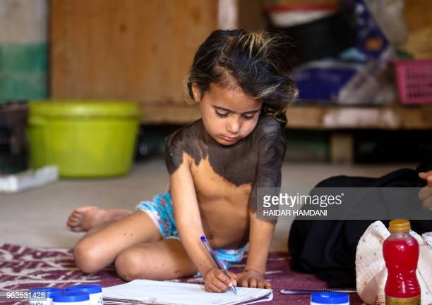 Haura a fouryearold Iraqi child with a rare skin congenital disease that covers much of her upper body in black marks and hair uses a pen to scribble...