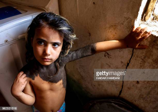 Haura a fouryearold Iraqi child with a rare skin congenital disease that covers much of her upper body in black marks and hair looks on as she stands...