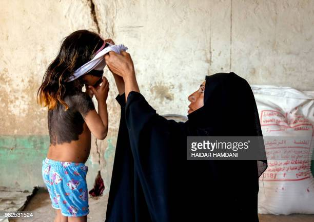 Haura a fouryearold Iraqi child with a rare skin congenital disease that covers much of her upper body in black marks and hair is dressed by her...