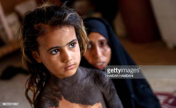 TOPSHOT Haura a fouryearold Iraqi child with a rare skin congenital disease that covers much of her upper body in black marks and hair looks on as...