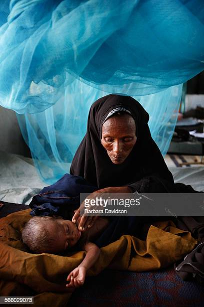 Hawa Barre Osman looks for a sign of life from her one–year–old severely malnourished child Abdi Noor Ibrahim inside the Médecins Sans Frontières...