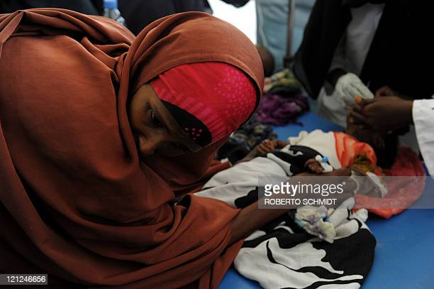 Hawa Mohamed the mother of fourmonthold Hamsa keeps her head turned away form her child as doctors introduce a tube into the baby's nose used for...
