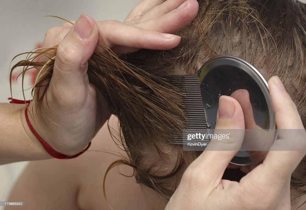 Head lice treatment for bug removal : Stock Photo