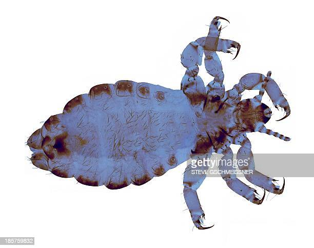head louse, light micrograph - louse stock pictures, royalty-free photos & images