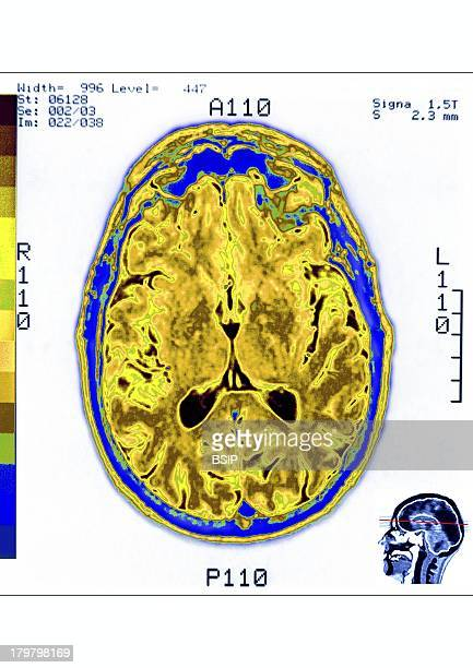 Head MRI Axial Section Of A Human Skull The Brain And The Frontal Sinuses