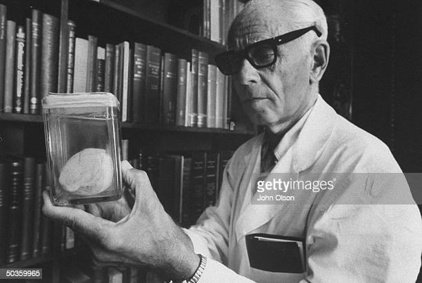 Head of Institute of Exprimmental Research and Surgery Dr Hans Selye looking at an arthritic hip joint he had surgically removed