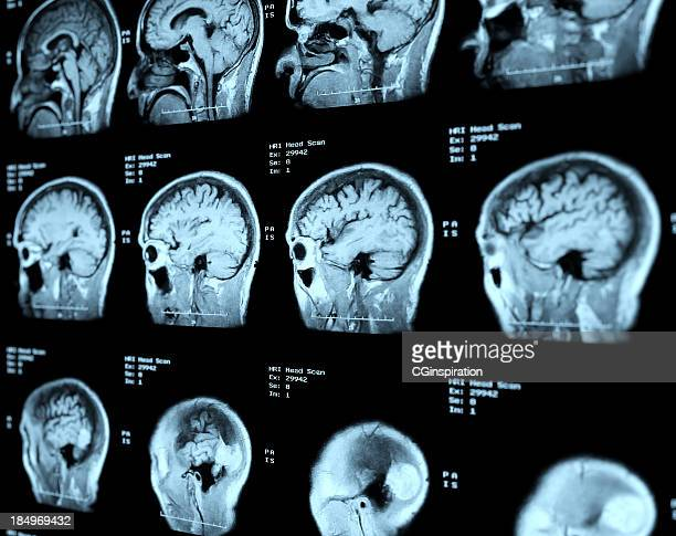 mri head scan perspective - brain tumour stock pictures, royalty-free photos & images