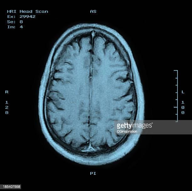 MRI Scan-Top mit Kopf