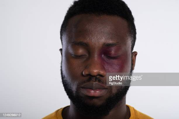 head shot of a sad face with a bruise of the afro man - black civil rights stock pictures, royalty-free photos & images