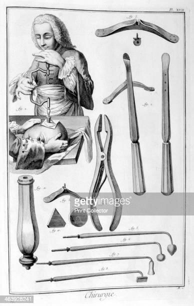 Head surgery 17511777 A print from the Encyclopédie ou Dictionnaire Raisonné des Sciences des Arts et des Métiers by Diderot d'Alembert 17511777 From...