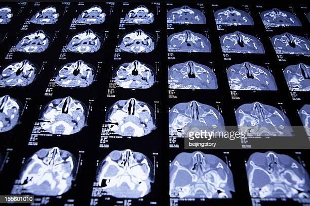head x-ray