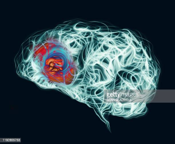 headache at front of brain - dementia stock pictures, royalty-free photos & images