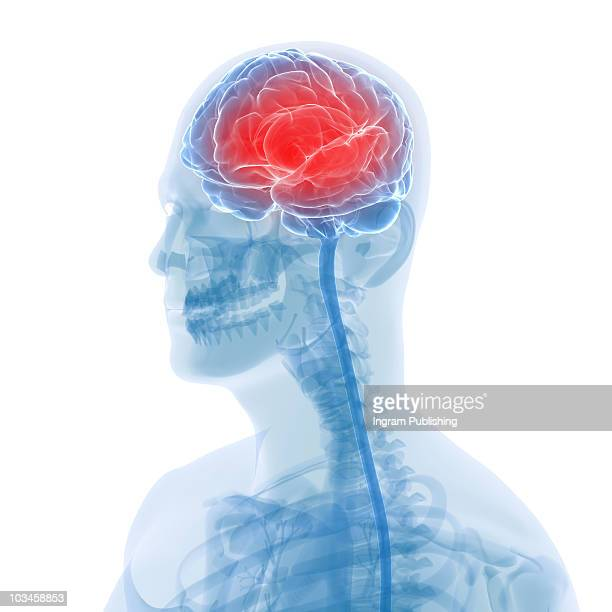 headache - inflammation stock pictures, royalty-free photos & images