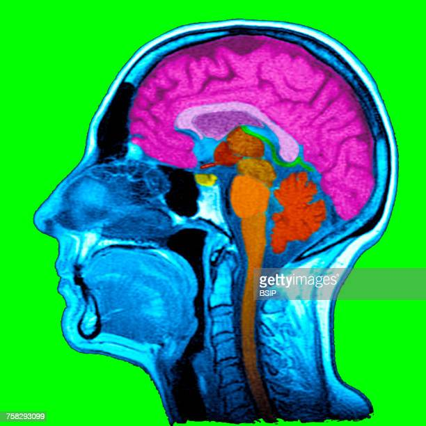 head,mri - medulla stock photos and pictures