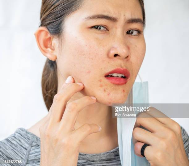 headshot of asian woman worry about acne occur on her face after wearing mask for long time during covid-19 pandemic isolated on white background. - cyst stock pictures, royalty-free photos & images