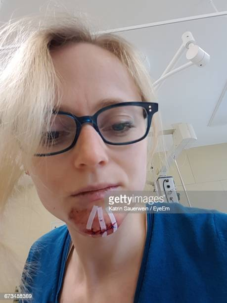 headshot of woman with stitches on injured chin at hospital - sutura fotografías e imágenes de stock
