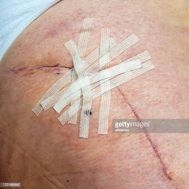 healing hip replacement wound with steri-strips - medical stitches stock photos and pictures