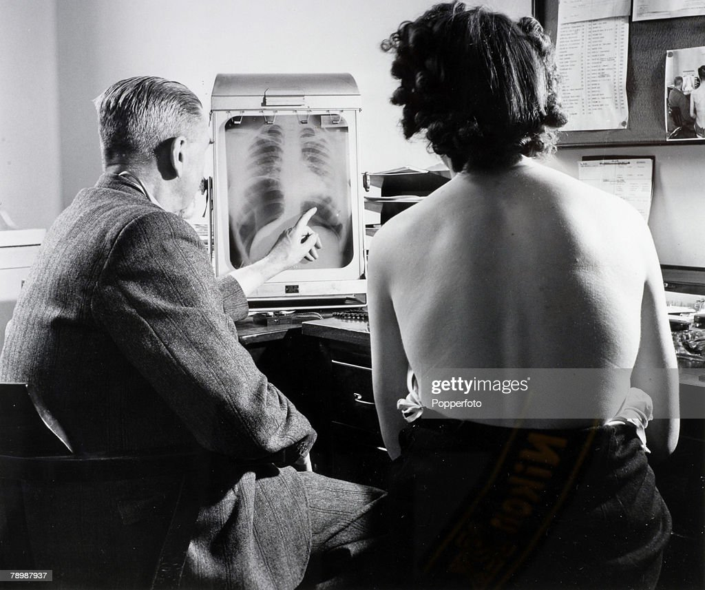 Health, National Health Service, Great Britain, pic: July 1948, A patient with a chest specialist at a Bristol health centre as they inspect a chest x-ray, The health centre was part of the newly introduced free National Health Service