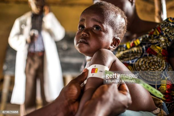 Health personnel measures a child as part of a program for malnourished children sponsored by the World Food Program at a Health Center in Mavivi...