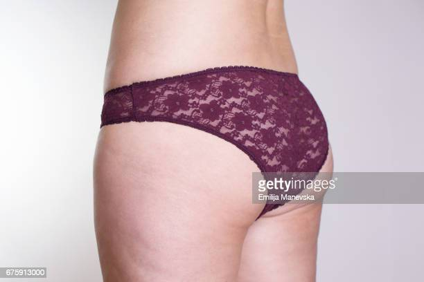 health problem - cellulite - chubby legs stock photos and pictures