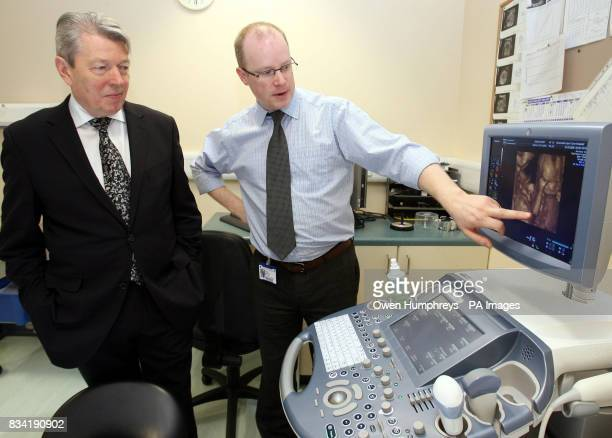 Health Secretary Alan Johnson looks at a 4 week scan in 4D at the Royal Victoria Infirmary Newcastle