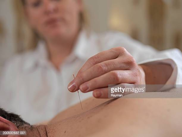 healthcare worker placing acunpuncture needle on patient - acupuncture needle stock pictures, royalty-free photos & images