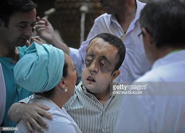 STORY HealthsurgeryfacetransplantSpain Rafael hugs a nurse after undergoing a face transplant at Sevilla's Hospital Virgen del Rocio on May 4 2010...
