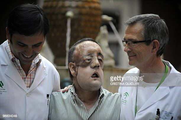 STORY HealthsurgeryfacetransplantSpain Rafael poses with doctor Tomas Gomez Cia head of the plastic surgery unit after undergoing a face transplant...