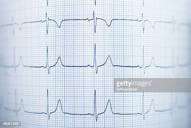healthy electrocardiogram - pulse trace stock pictures, royalty-free photos & images