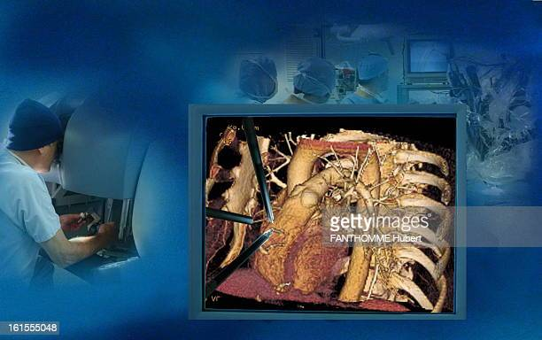 The Revolution Of MiniInvasive Surgery Photomontage to illustrate the operations of minimally invasive heart and arteries the surgeons eyes on...