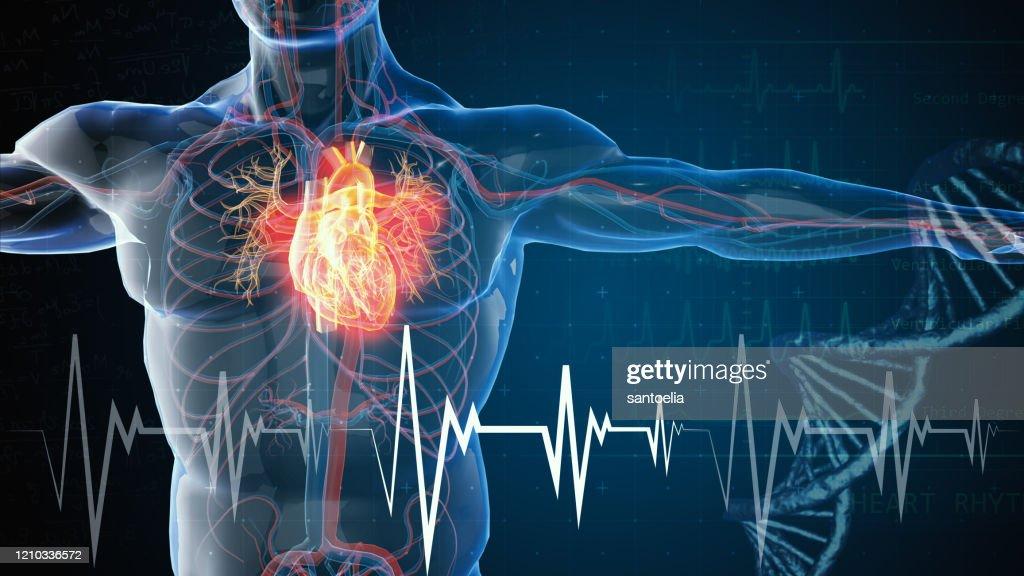 Herzinfarkt und Herzerkrankungen : Stock-Foto