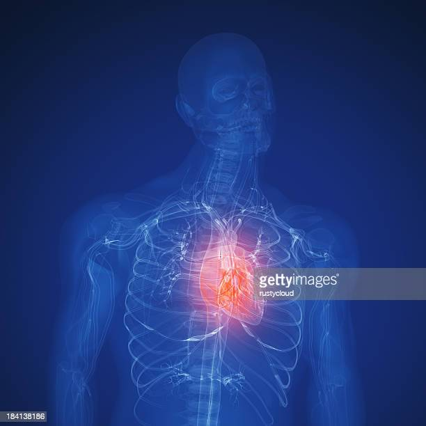 heart attack - heart disease stock pictures, royalty-free photos & images