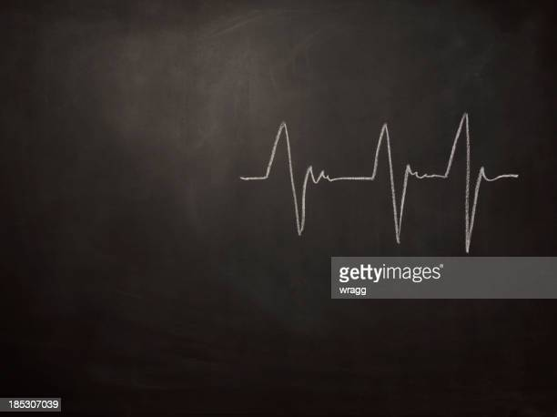 Heart Beat on a Blackboard