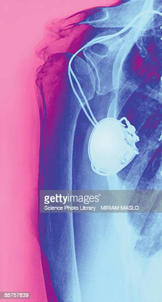 Heart pacemaker colored x-ray
