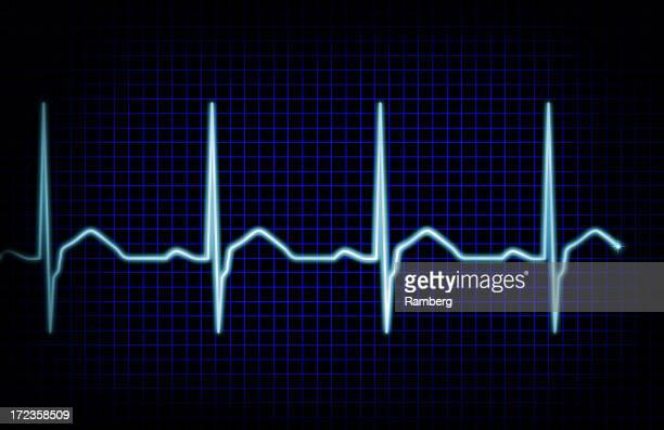 Heart rythm XXL