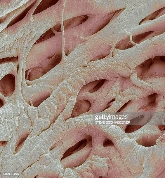 heart strings, sem - cardiac muscle tissue stock photos and pictures
